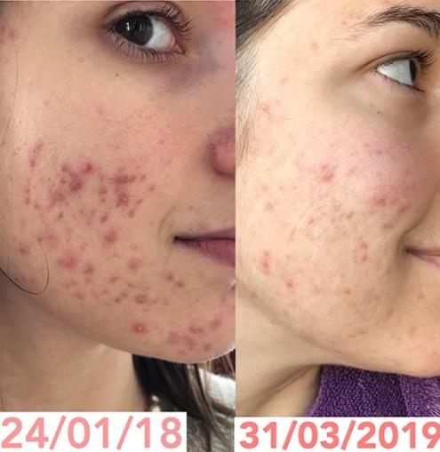 Traitement nature acné résultat