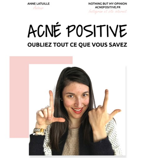 Ebook Acné Positive Nothing But My Opinion